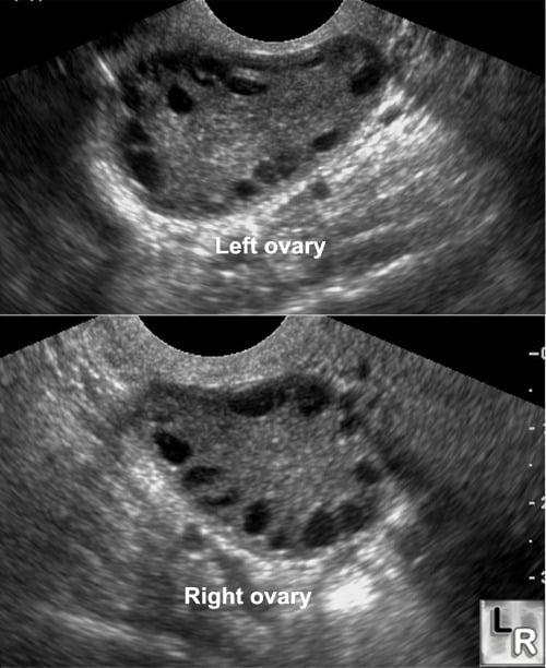 polykystiset munasarjat ja raskausdiabetes